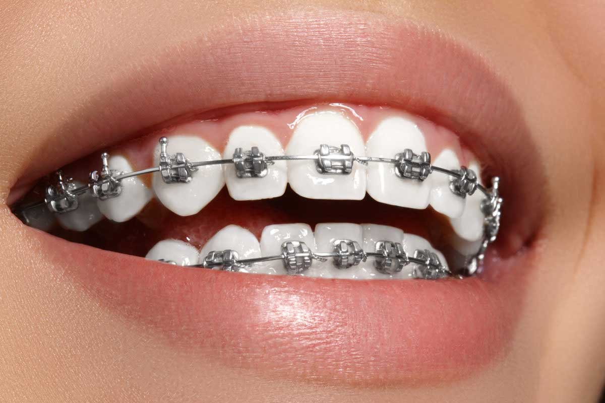 Braces are Now More Affordable Than Ever Before