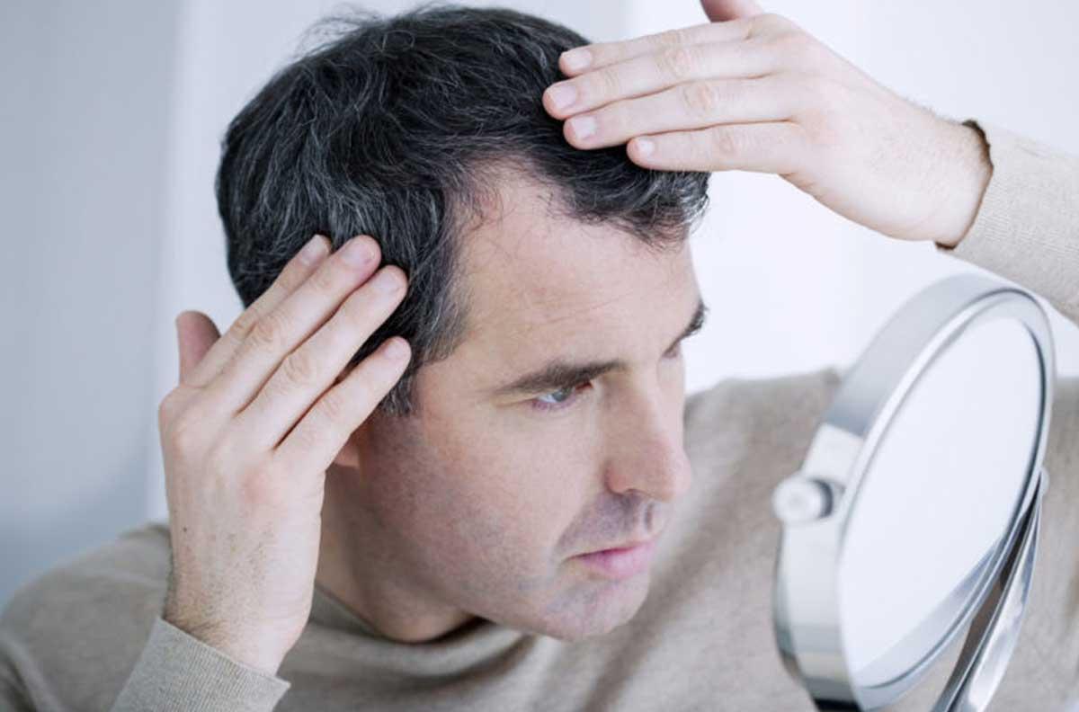 FUE method in hair transplantation