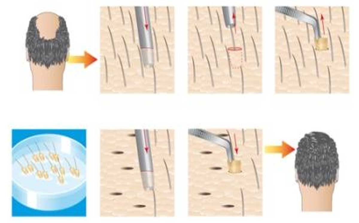 FUE-transplantation-method