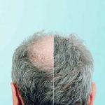 Hair transplantation by FUE method