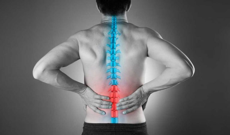 Spinal Cord Injuries From Car Accidents: What You Need to Know